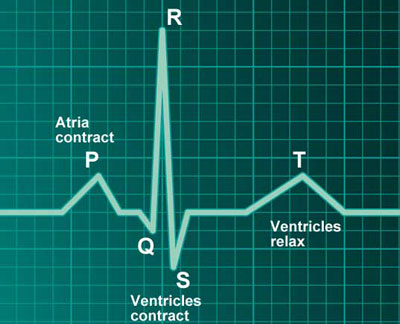 Heart beat graph (Myocardiogram)